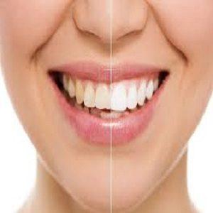 Prodotto per la Pulizia dei Denti